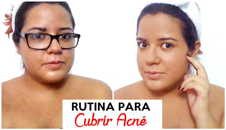 Cómo Cubrir Acné con Maquillaje