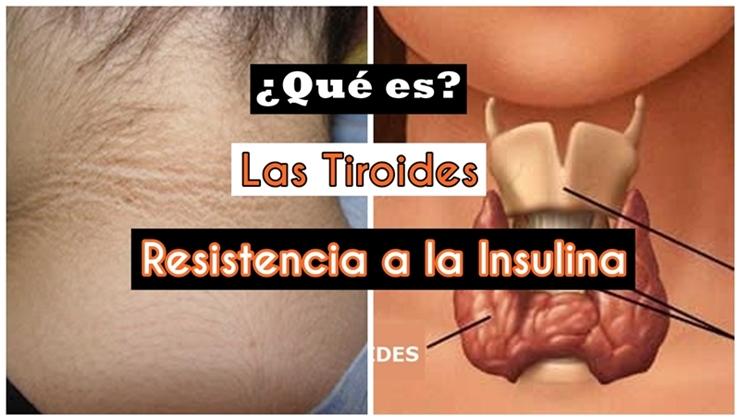 Tiroides y resistencia a la insulina