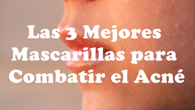Las 3 mejores mascarillas para combatir el acné