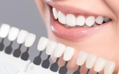 Aprende como quitar el sarro en los dientes